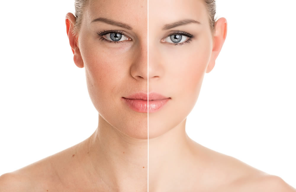 Dermal Fillers - Voluma