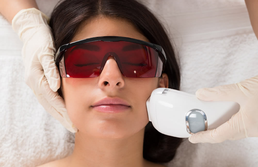 Laser Hair Removal - Face